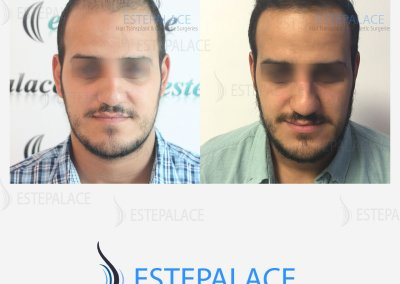 לפני ואחרי