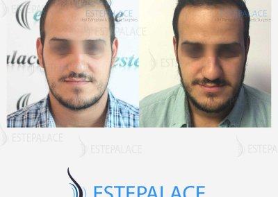 לפני-ואחרי-2