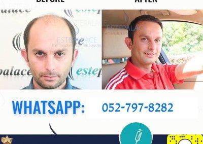 לפני-ואחרי-3
